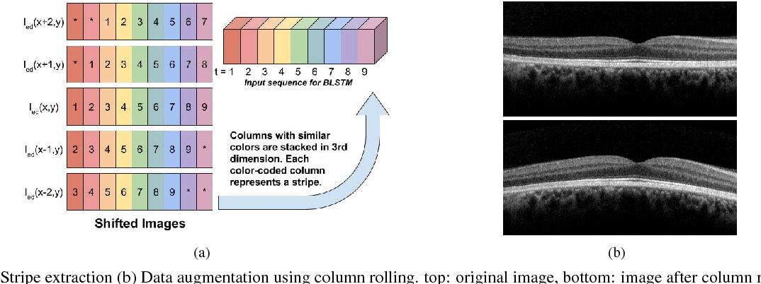 Figure 2 for A deep learning framework for segmentation of retinal layers from OCT images