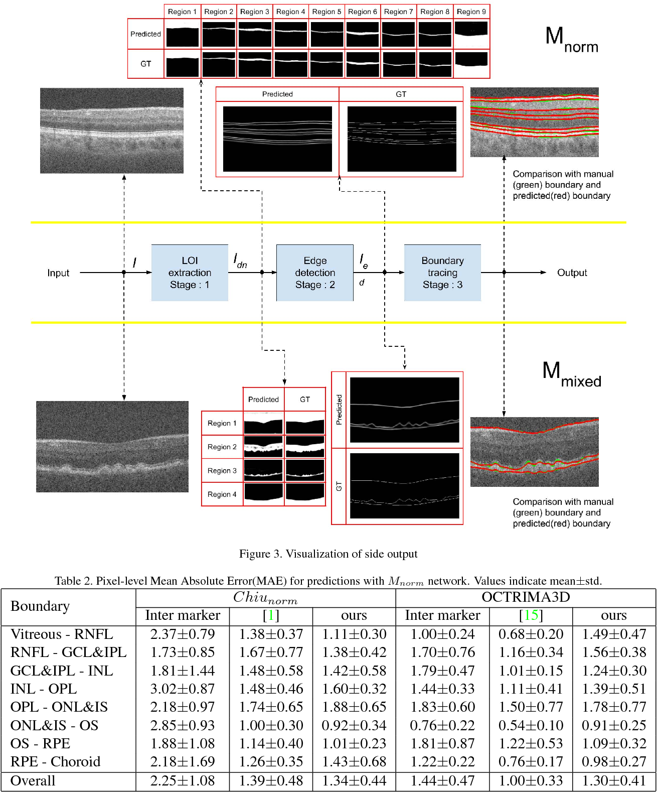 Figure 3 for A deep learning framework for segmentation of retinal layers from OCT images