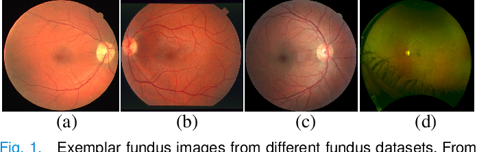 Figure 1 for Unsupervised Domain Adaptation for Retinal Vessel Segmentation with Adversarial Learning and Transfer Normalization