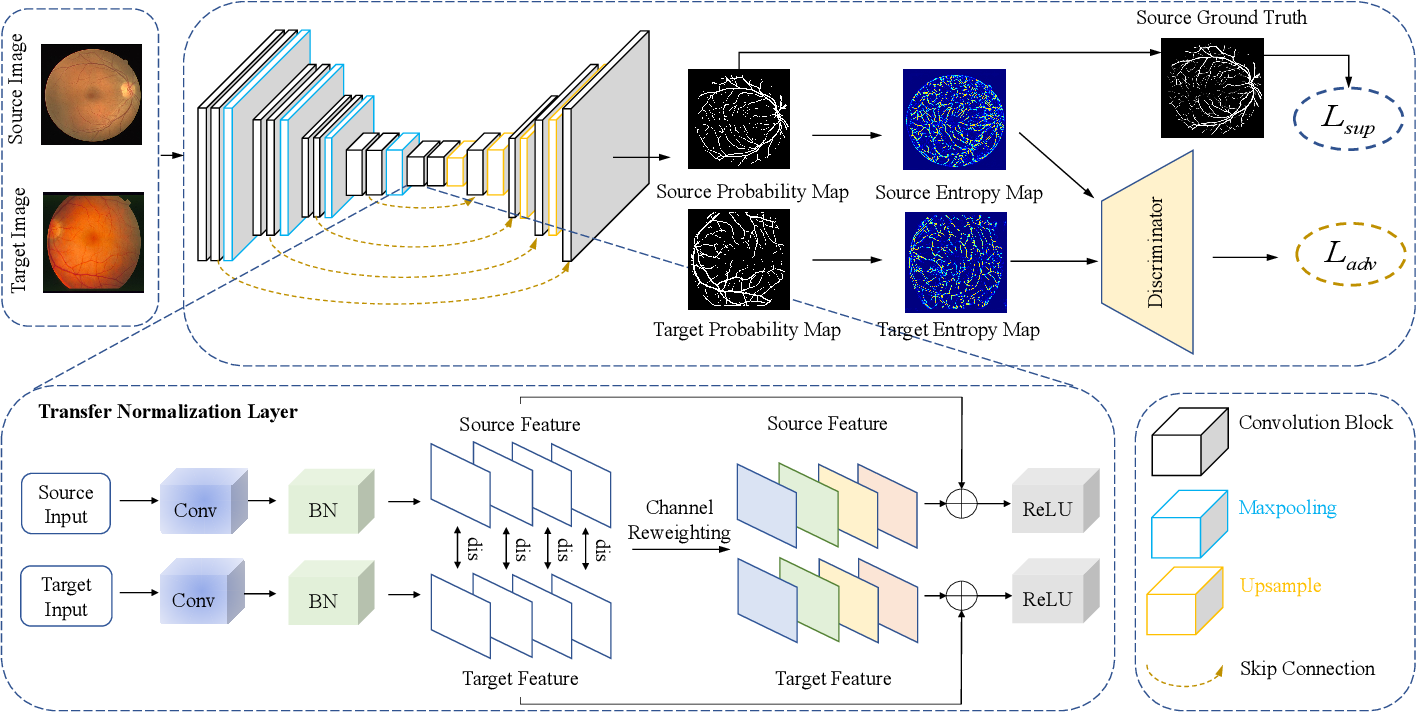 Figure 2 for Unsupervised Domain Adaptation for Retinal Vessel Segmentation with Adversarial Learning and Transfer Normalization