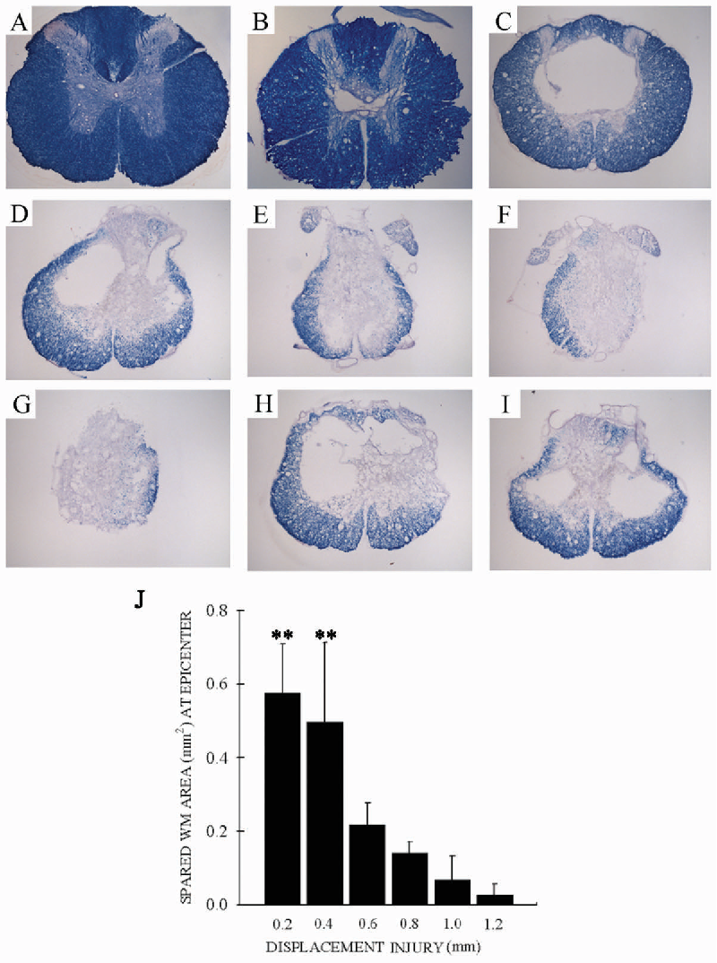 FIG. 7. There was greater tissue loss as displacement injury increased: 0-mm (A), 0.2-mm (B), 0.4-mm (C), 0.6-mm (D), 0.8-mm (E), 1.0-mm (F), and 1.2-mm (G) displacement (iron-eriochrome cyanine RC staining). Higher velocity (2 m/sec; H) and longer duration of cord-impactor contact (5 sec; I) did not show a difference in white matter (WM) sparing compared with the 0.6-mm displacement. (J) There was a greater degree of white matter sparing among the 0.2- and 0.4-mm groups compared to the higher displacement groups (p 0.001). Data are the mean SD (n 5–6/group).
