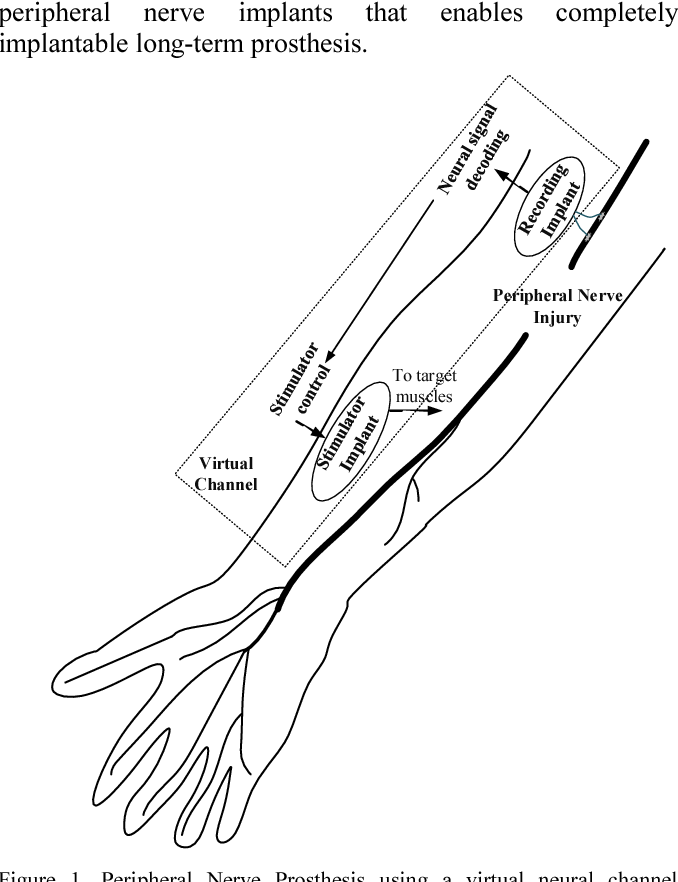 Wireless For Peripheral Nerve Prosthesis And Safety