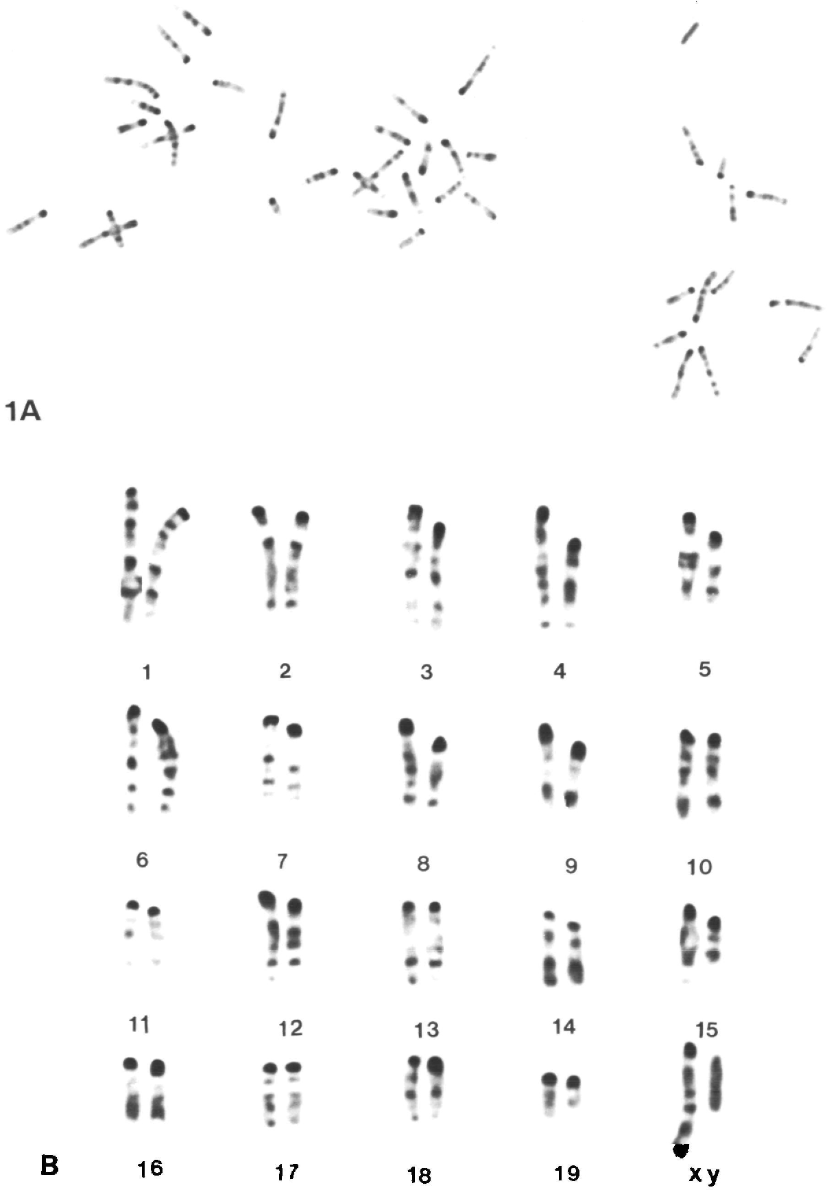 Figs 1A, 2A. Air-dried chromosome spreads from two normal fertilized mouse eggs at the first cleavage metaphase, each displaying 40 chromosomes. Giemsa-banded preparation.