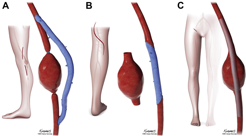 Open and endovascular repair of popliteal artery aneurysms: tabular ...
