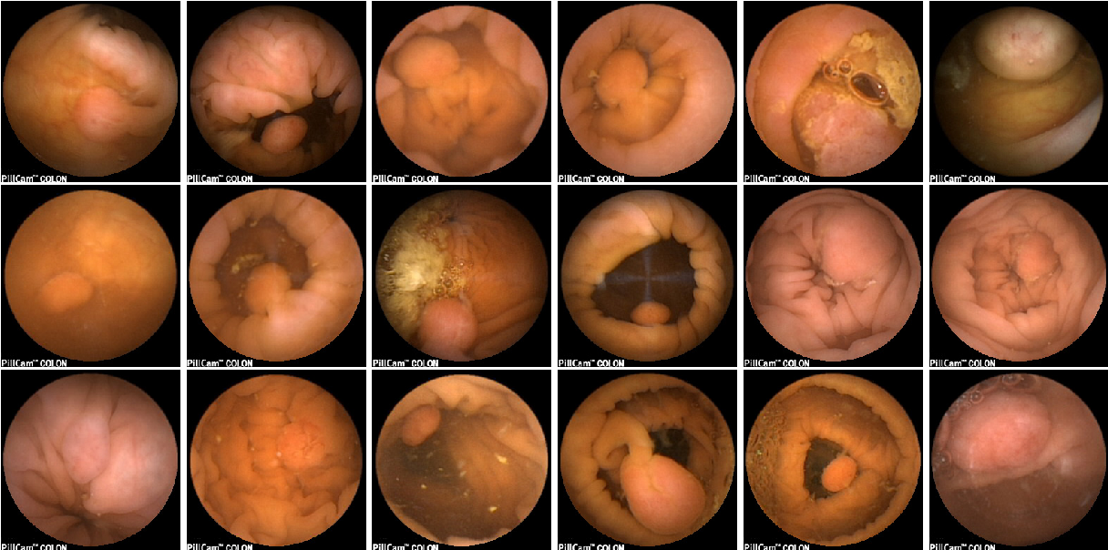 Figure 1 for Polyp Detection and Segmentation from Video Capsule Endoscopy: A Review