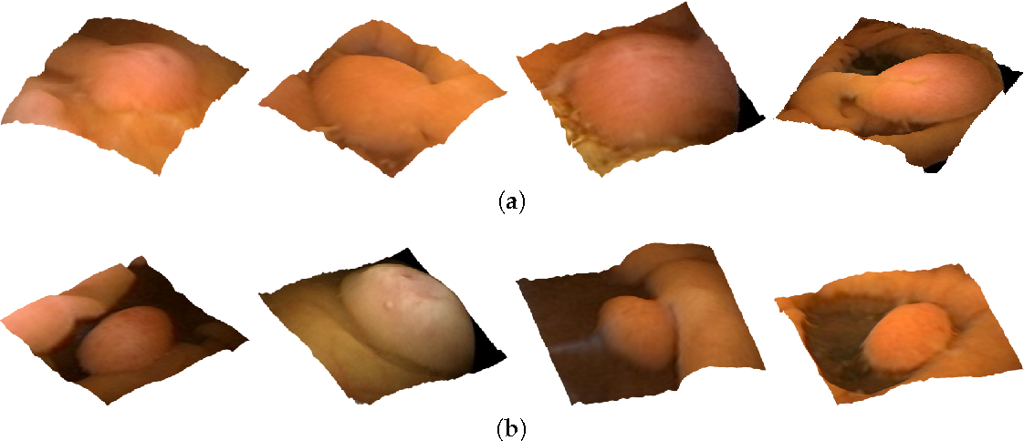 Figure 3 for Polyp Detection and Segmentation from Video Capsule Endoscopy: A Review