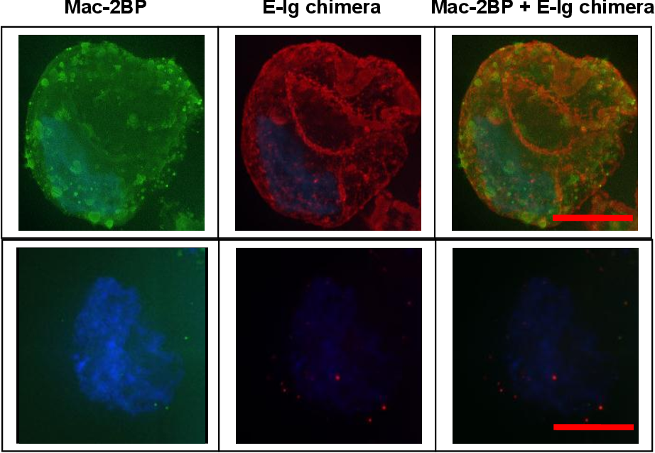 PDF] Molecular Mechanisms of Circulating Tumor Cell Adhesion