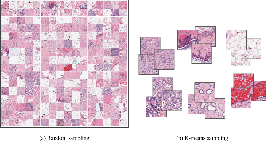 Figure 1 for Overcoming the limitations of patch-based learning to detect cancer in whole slide images