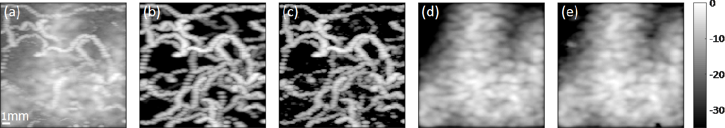 Figure 3 for Algorithm Unrolling: Interpretable, Efficient Deep Learning for Signal and Image Processing