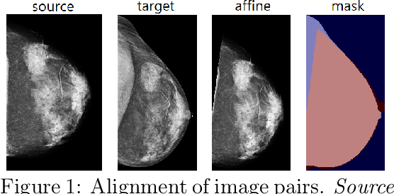 Figure 1 for Screening Mammogram Classification with Prior Exams