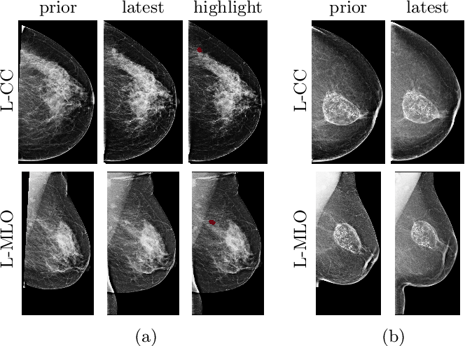 Figure 4 for Screening Mammogram Classification with Prior Exams