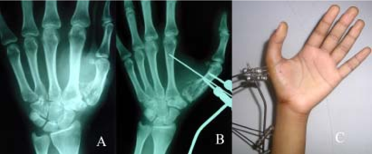Figure 3 from Comminuted Rolando\'s fractures: treatment with ...