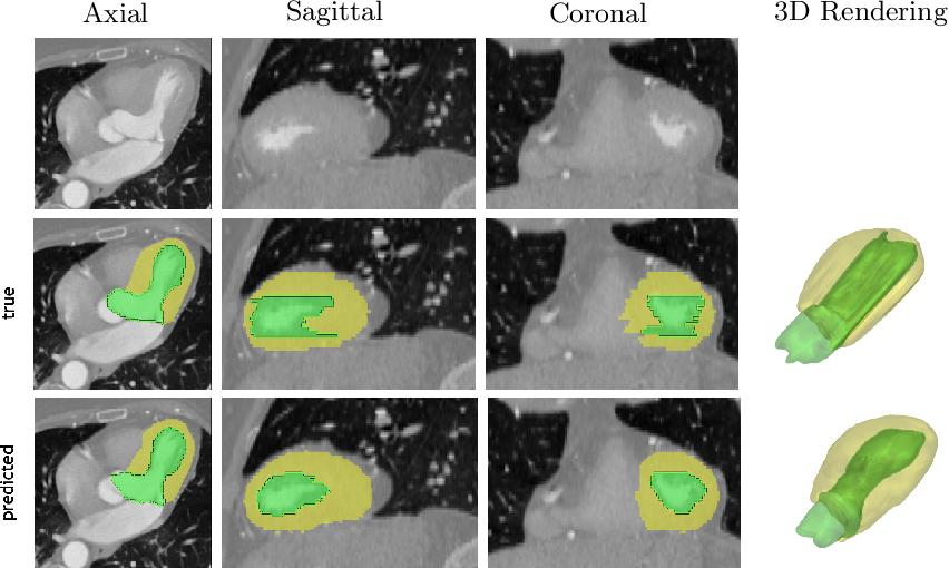 Figure 3 for 4D CNN for semantic segmentation of cardiac volumetric sequences