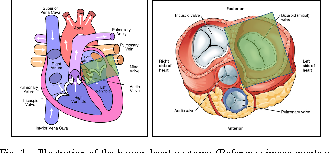Figure 1 from Mitral valve annulus localization in 3D