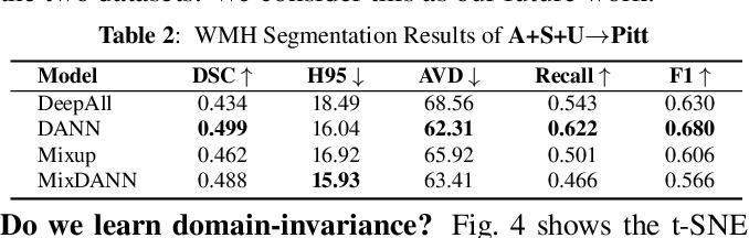 Figure 4 for Robust White Matter Hyperintensity Segmentation on Unseen Domain