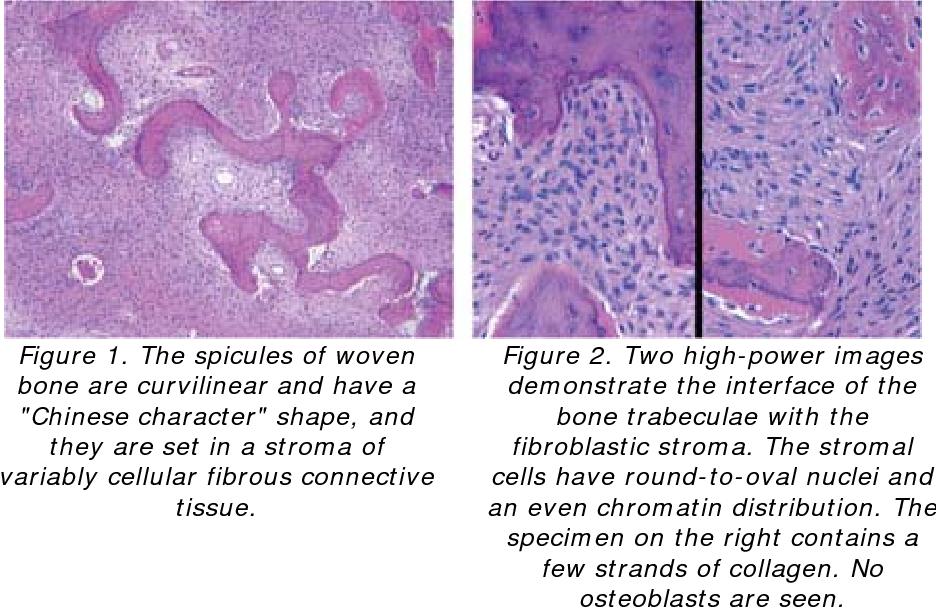 Figure 1 From Fibrous Dysplasia Of Bone Semantic Scholar