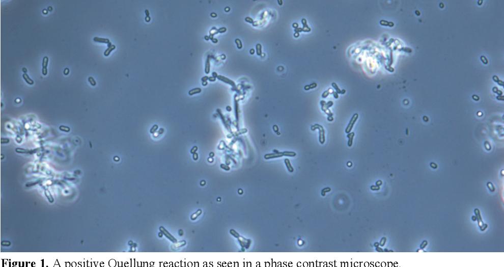 Clonality of Streptococcus pneumoniae in relation to