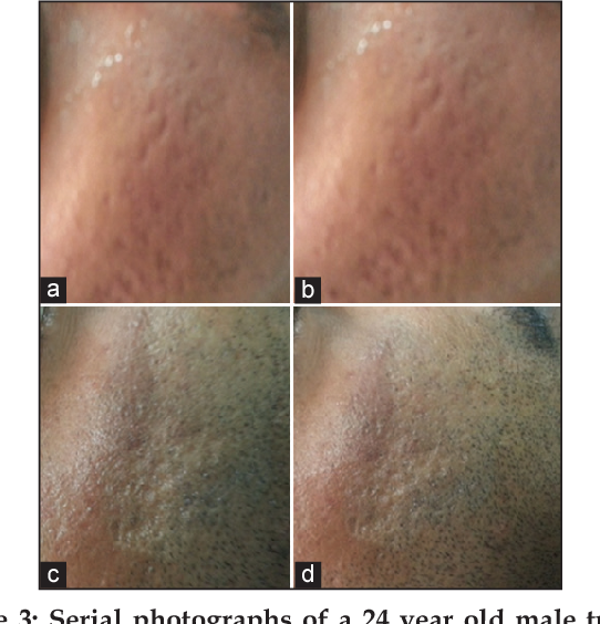Figure 3 from Split Face Comparative Study of Microneedling with PRP