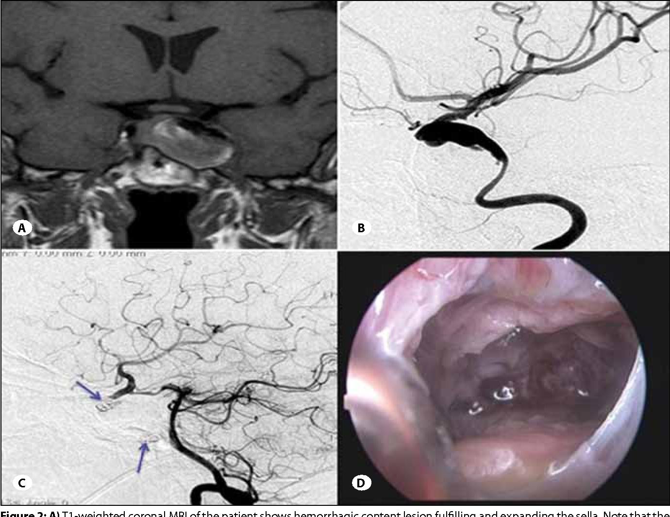 Figure 2 from Endoscopic approach to cavernous sinus aneurysm ...