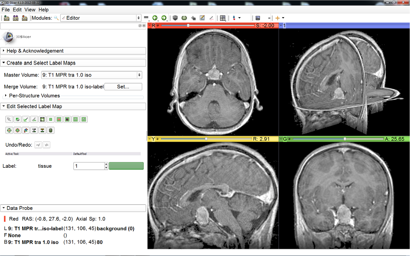 Figure 1 for Pituitary Adenoma Volumetry with 3D Slicer