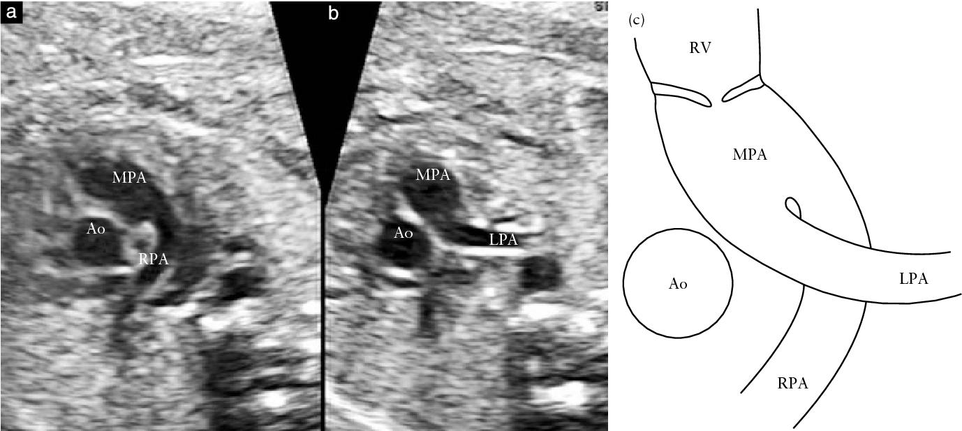 Figure 1 From Prenatal Diagnosis Of Crossed Pulmonary Arteries