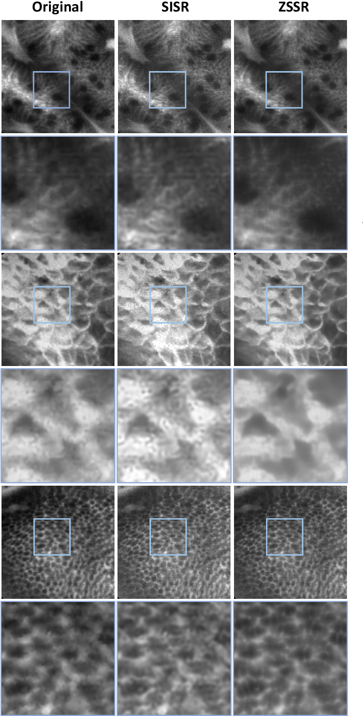 Figure 4 for Zero-shot super-resolution with a physically-motivated downsampling kernel for endomicroscopy