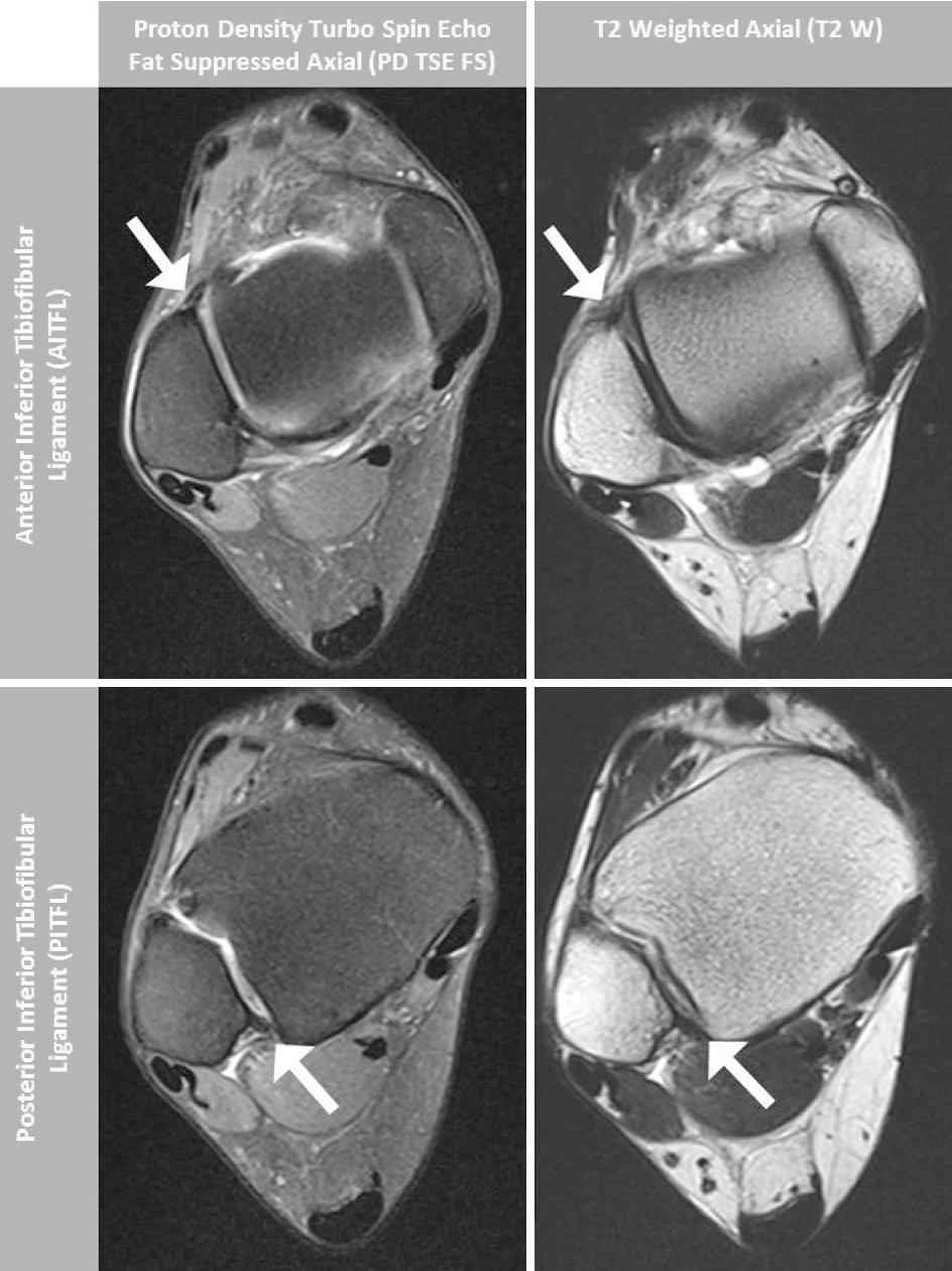 Magnetic resonance imaging characterization of individual ankle ...