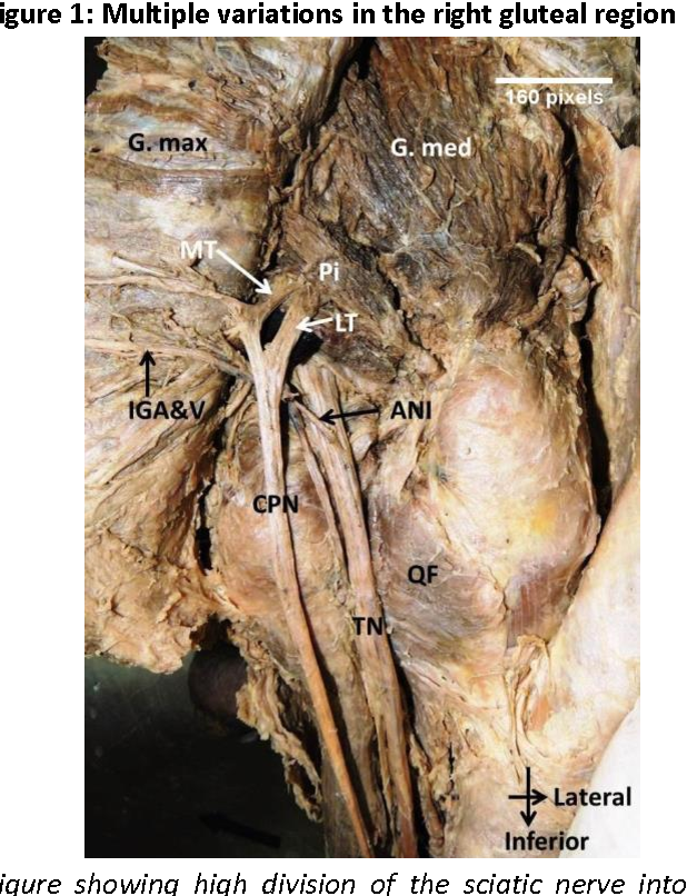 An unorthodox innervation of the gluteus maximus muscle and other ...