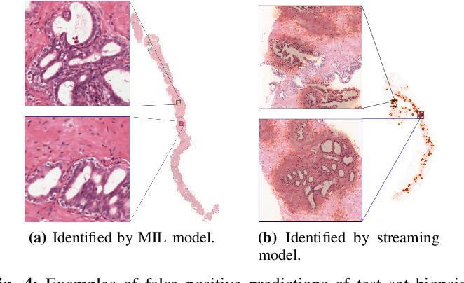Figure 4 for Detection of prostate cancer in whole-slide images through end-to-end training with image-level labels