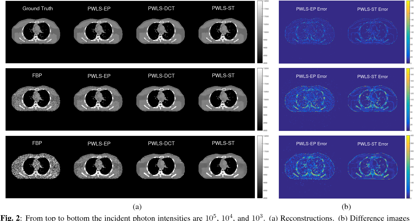 Figure 3 for Low Dose CT Image Reconstruction With Learned Sparsifying Transform