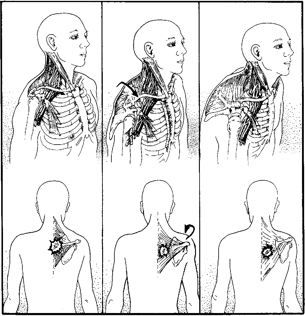 Thoracic Outlet Syndrome Pain Pattern Awesome Decorating