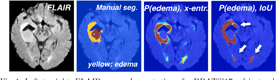 Figure 1 for Ensembles of Multiple Models and Architectures for Robust Brain Tumour Segmentation