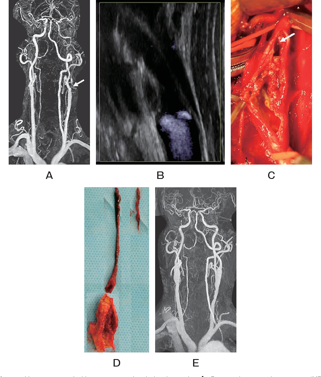 Carotid endarterectomy for symptomatic complete occlusion of the ...