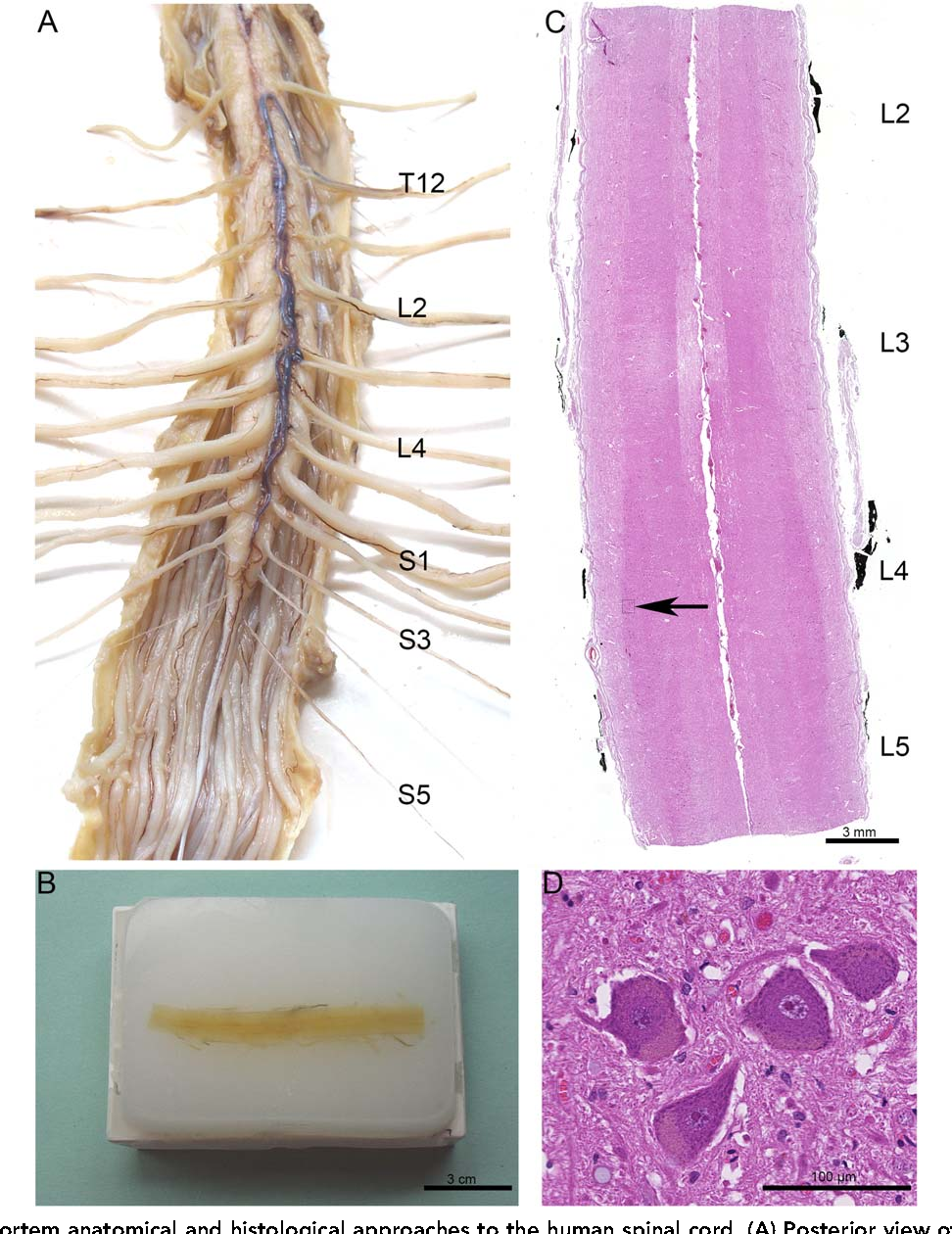 Figure 1 From Human Spinal Ejaculation Generator Semantic Scholar