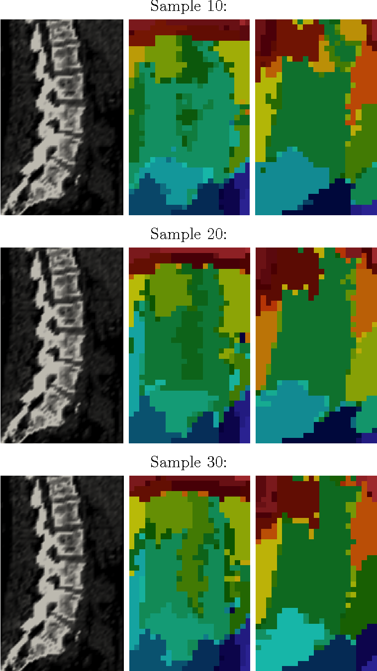 Figure 5: Colors are clusters. Left row: Template spine image. Middle row: Back pain patients. Right row: Abdominal pain patients.