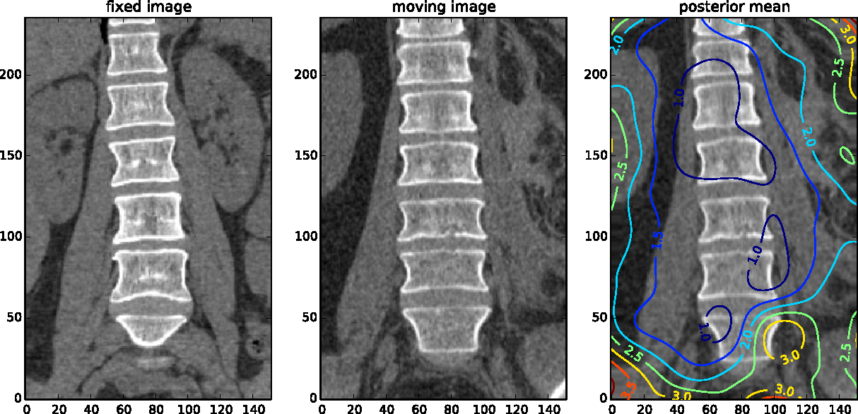 Figure 1: The contour plot (most right image) shows credible interval length of the displacement magnitude in millimeter when deforming the moving image (middle image) to the fixed image (most left image).
