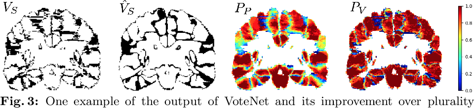 Figure 4 for VoteNet: A Deep Learning Label Fusion Method for Multi-Atlas Segmentation