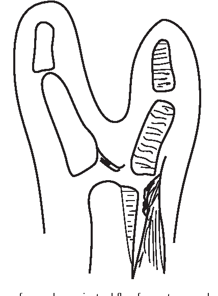 Figure 5 From Thumb Duplication Concepts And Techniques