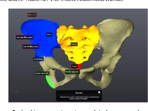 The Online Anatomical Human : Web-based Anatomy Education - Semantic ...