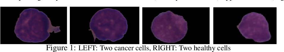 Figure 1 for Heterogeneity Loss to Handle Intersubject and Intrasubject Variability in Cancer