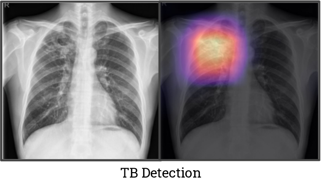 Figure 4 for CheXpedition: Investigating Generalization Challenges for Translation of Chest X-Ray Algorithms to the Clinical Setting