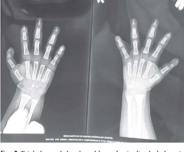 FIG. 2 Triphalangeal thumb and hypoplastic distal phalanx in other fingers. & Figure 2 from DOOR syndrome. - Semantic Scholar