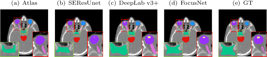 Figure 4 for FocusNet: Imbalanced Large and Small Organ Segmentation with an End-to-End Deep Neural Network for Head and Neck CT Images