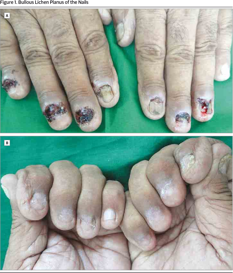 Figure 1 from Bullous Lichen Planus of the Nails. - Semantic Scholar