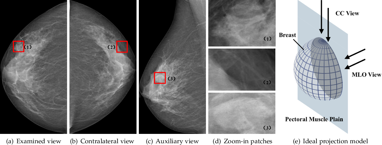 Figure 1 for Act Like a Radiologist: Towards Reliable Multi-view Correspondence Reasoning for Mammogram Mass Detection