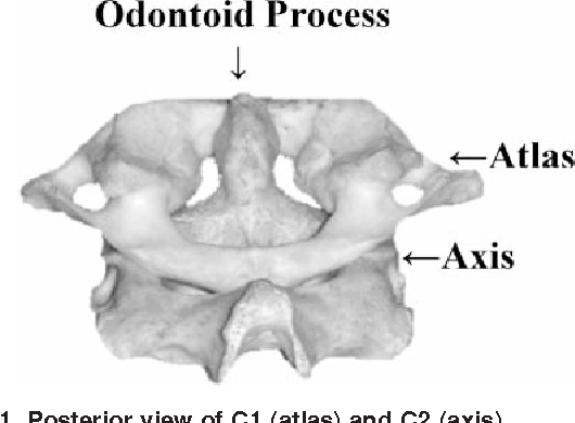Cervical spine functional anatomy and the biomechanics of injury due ...