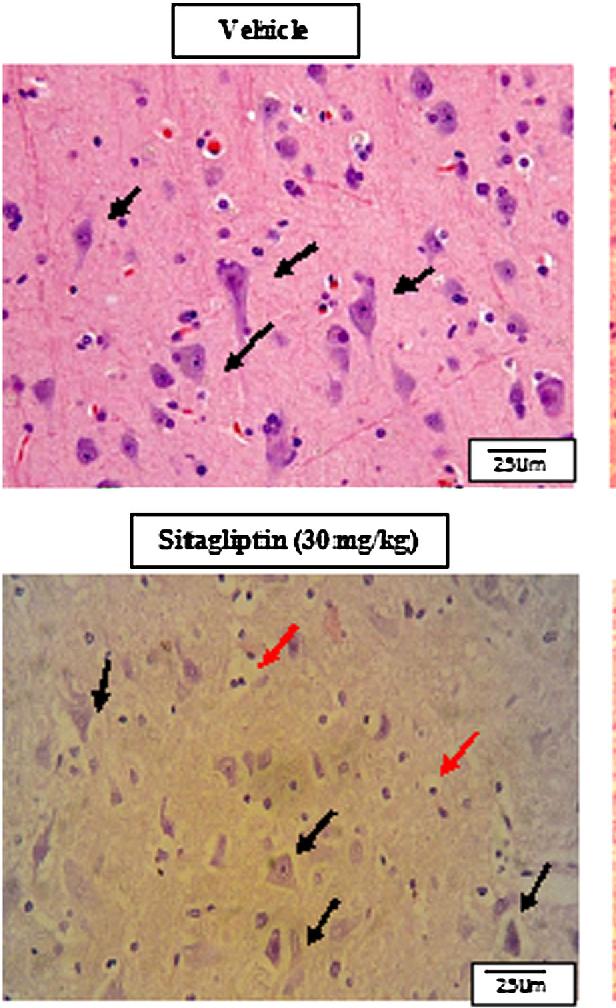 Sitagliptin and liraglutide reversed nigrostriatal degeneration of