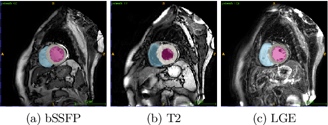 Figure 1 for Cardiac Segmentation of LGE MRI with Noisy Labels