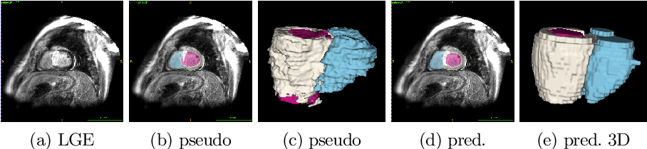Figure 3 for Cardiac Segmentation of LGE MRI with Noisy Labels