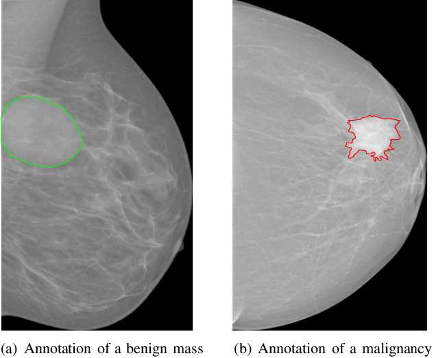 Figure 1 for Dual Convolutional Neural Networks for Breast Mass Segmentation and Diagnosis in Mammography